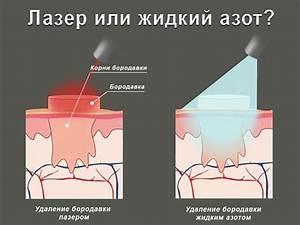 Лечение бородавок у детей жидким азотом