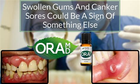 Infected Canker Sore After Dental Work