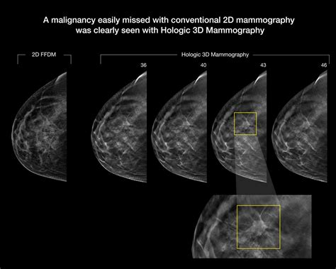 3-D mammography improves cancer detection in dense breasts ...