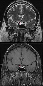 Pituitary Tumors - Neurologic Disorders