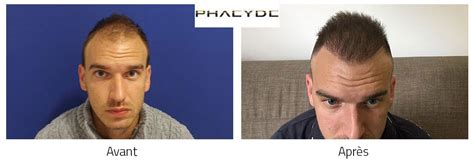 Hair Transplant Cs. Karoly 5000 Before After