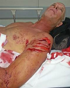 Pictured: Diver left with gruesome wounds after being ...