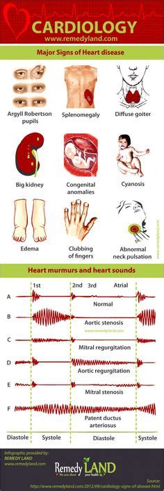 5 Areas Of Auscultation For Heart Sounds (i Use A. Dedicated Hosting Prices Domains And Websites. How To Pay Off Debt Fast Iupui Online Degrees. Sylmar Rehabilitation Center. Surgical Tech Schools In Illinois. Remote Desktop Services Windows Server 2012. Diet For Erectile Dysfunction. Telemarketing Lead Lists Bread Baking Courses. Continuous Delivery Pdf Online Training Tools