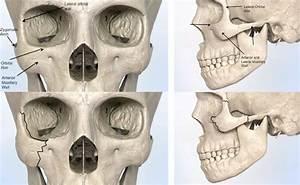 Diagram Of Cheek Bone