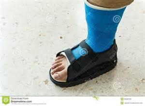 Blue Broken Foot Cast