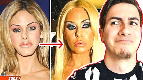 Chirurgie Photoshop !