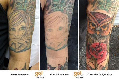forearm tattooed  client realized