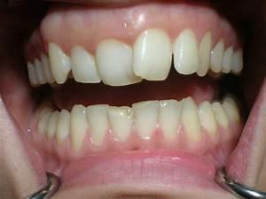 Dents Qui Se Déchaussent Photos : dents qui se d place 1 forum cheval ~ Medecine-chirurgie-esthetiques.com Avis de Voitures