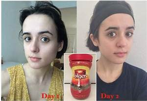 See Her Result After Washing The Face With Java Coffee For A Week