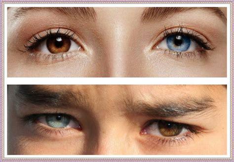 Самый редкий цвет глаз и необычные оттенки