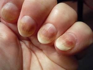 Грибок ногтей после маникюра