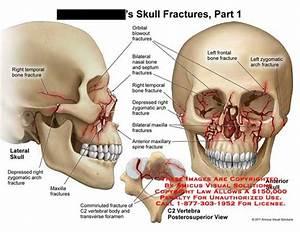 Zygomatic Arch Bone - Anatomy