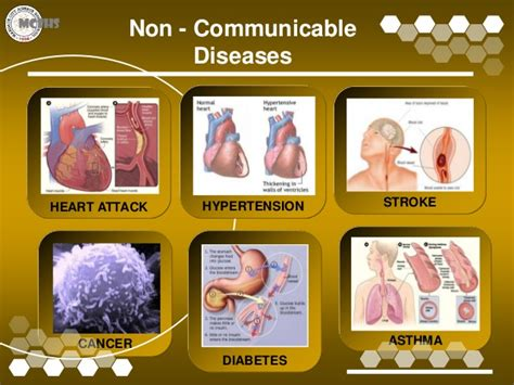 Communicable Diseases. Reasons To Refinance Your Home. Pittsburgh Cleaning Services. House Painters Fort Worth New Orleans Dentist. Inpatient Drug Treatment Facilities. Small Business Attorney Fees Donate Car Ca. School Loan Forgiveness Program. Free Web Based Video Chat What Is A Pay Card. Engineering Trade School Glasses Cambridge Ma