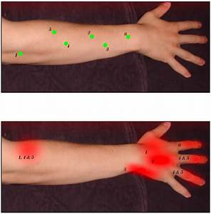 Curing Wrist And Thumb Pain