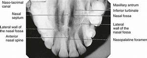 11  Occlusal Radiography