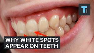 Heres Why Some People Have White Spots On Their Teeth