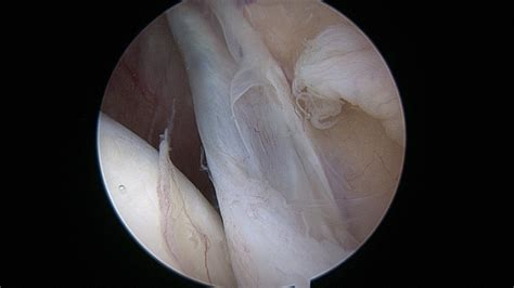Large medial plica - Arizona Institute for Sports, Knees and Shoulders