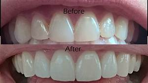 Dental Veneers Procedure Overview - YouTube