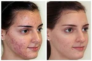 Best Cystic Acne cures - renee rouleau anti-cyst Treatment