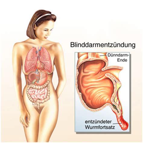Darmverschluss anzeichen