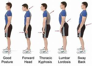 Exercises to Correct Kyphosis | ... kyphosis there are ...