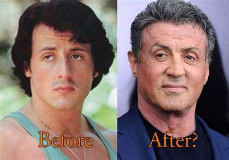 chris owen ear surgery sylvester stallone plastic surgery before after facelift