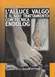Libreria Scientifica Ferrara by L Alluce Valgo E Il Suo Trattamento Con Tecnica Endolog