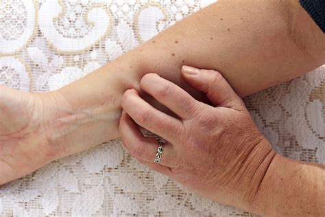 itching   reason immune system    fault
