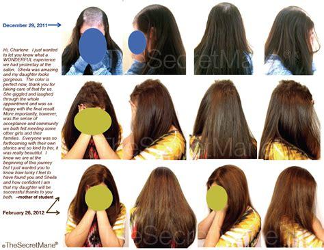 hair grow   hair loss