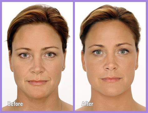 PrimeAesthetica Before & after