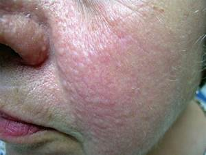Numerous Fibrous Papules Of The Face Unassociated With Any