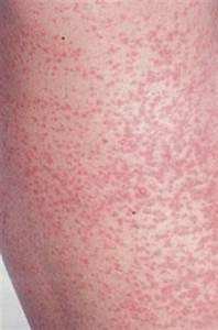 Rubella (German measles) - Little red disease | Body ...