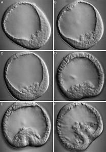 Pics For > Gastrulation Sea Urchin