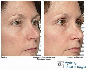 accent skin tightening before and after