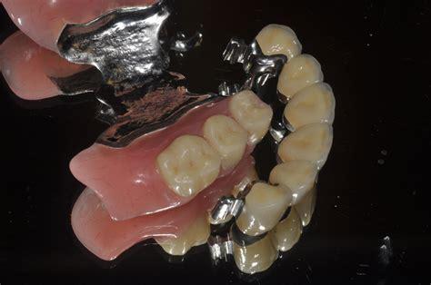 protesi mobile archivi laboratorio odontotecnico crotone