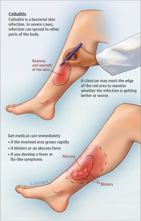 Cellulitis heel
