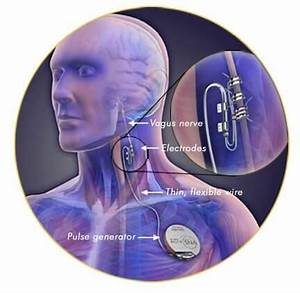 Study Shows Continuous Electrical Stimulation Suppresses