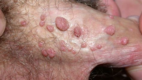 7 Facts You Should Know About Human Papilloma Virus (HPV