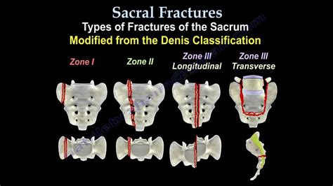 sacral fractures denis classification orthobullets canal