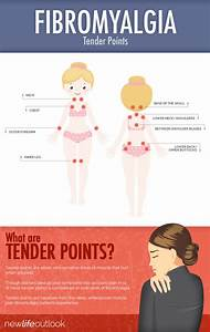 Fibromyalgia Tender Points  What And Where Are The Tender