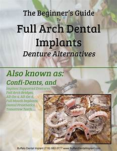 Full Mouth Implants Guide   Simplebooklet Com