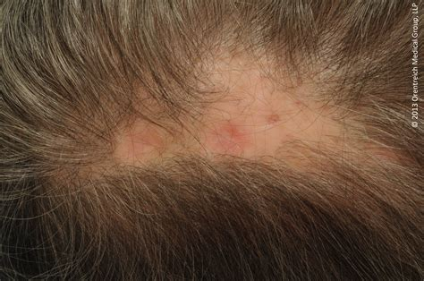 Image Gallery Scalp Sores