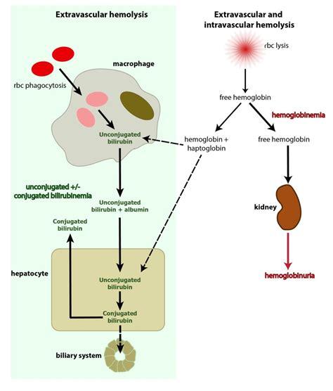 bilirubin  hemolytic anemia eclinpath