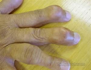 Gout  U2013 Symptoms  Diet  Causes  Treatment  Pictures  Medication
