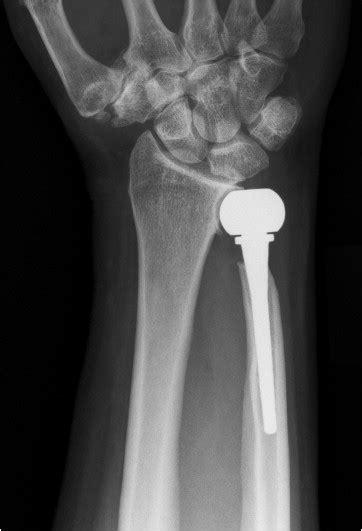 herbert ulnar head prosthesis arthroplasty satisfactory