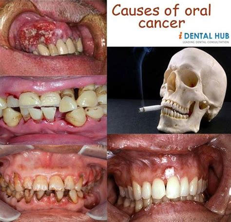Treatment & Prognosis Of Oral Cancer Wwwtanyabrowndmdm. Berlin Signs. Best Quality Signs. Teach Signs. Coffee Bar Signs Of Stroke. Cognitive Signs Of Stroke. Requirement Signs. Slurred Speech Signs. Isolation Precaution Signs Of Stroke