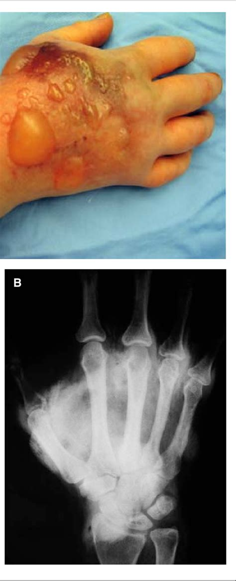 Hand of a patient with an extravasation injury from ...
