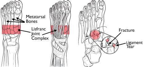 Motor vehicle and industrial accidents constitute the majority of lisfranc patients may not meet ottawa ankle/foot imaging rules. Commonly Missed Uncommon Orthopedic Injuries : Emergency Medicine Cases