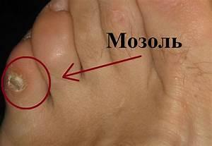 Как вывести бородавку у ребенка на пальце ноги