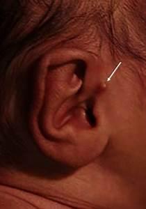Congenital Ear Abnormalities - Pediatrics